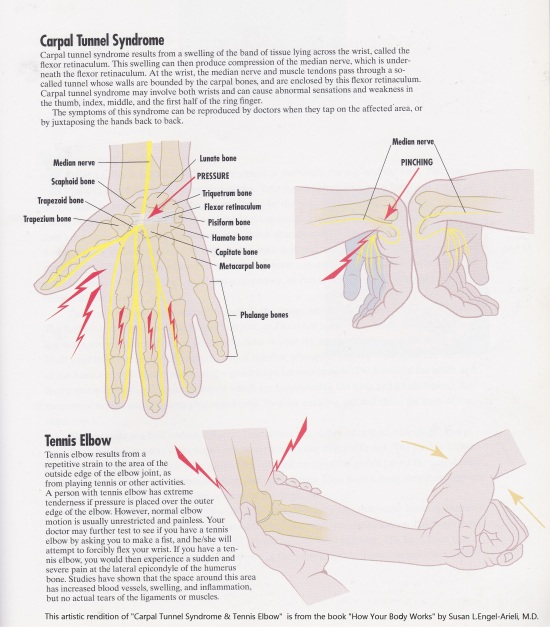 METAPHYSICAL CAUSE OF CARPAL TUNNEL SYNDROME